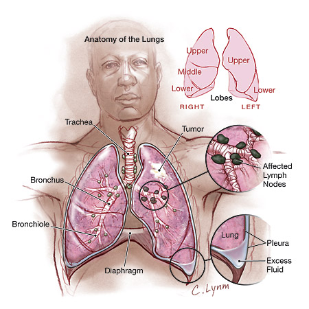 Lung Cancer (NSCLC), drug administration and nanotechnology ...