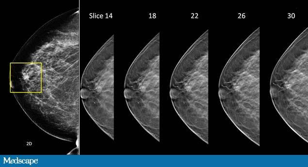 digital tomosynthesis in breast imaging