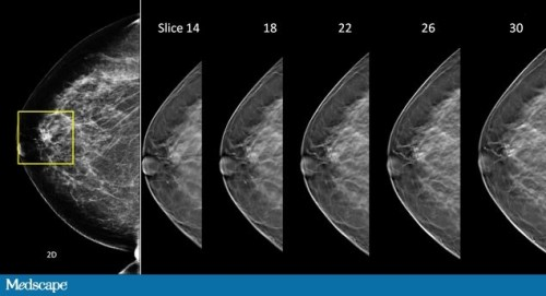 Figure. (a) A suspicious lesion seen on standard 2D digital mammography (far left). (b) After examining multiple slices generated using breast tomosynthesis (5 images), the lesion seen on 2D (far left) is determined to be a false positive. (Images courtesy of Hologic. Used with permission.)