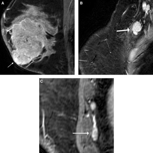 A 27-year-old female with locally advanced poorly differentiated invasive ductal carcinoma underwent evaluation of extent of disease before starting neoadjuvant chemotherapy. Sagittal fat-suppressed T1-weighted postcontrast MR images demonstrate an almost 6-cm heterogeneously enhancing mass (A) involving the skin of the lower breast (arrow) with (B) right axillary (arrow) and (C) right internal mammary adenopathy (arrow).