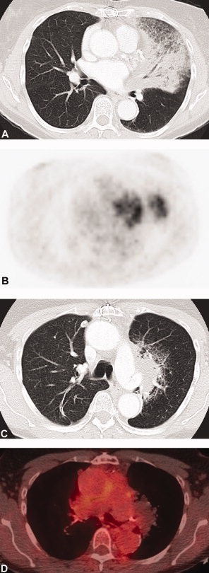 CT (A) demonstrated extensive consolidation with air bronchograms in the left upper lobe, which at surgical resection were found to represent adenocarcinoma of mixed subtype with predominate (70%) mucinous bronchioloalveolar subtype. PET imaging in the same patient (B) demonstrated uptake in the lingula higher than expected for bronchioloalveolar carcinoma and probably due to secondary inflammation/infection. CT (C) obtained 3 years after images (A) and (B) demonstrated biopsy-proven recurrent soft-tissue mass near surgical site. Fused FDG/PET images (D) demonstrate no uptake in the area. This finding is consistent with the decreased uptake usually seen in tumors of bronchioloalveolar histology (new terminology of MIA).