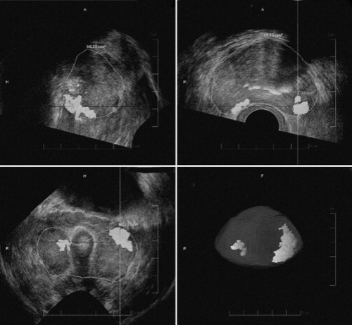 HistoScanning report with 2, bilateral, basal lesions.