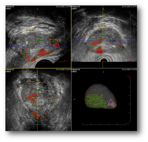 3D mapping of the prostate by HistoScanning analysis following motorised TRUS. the colored locations represents tissue suspicious for being cancer.