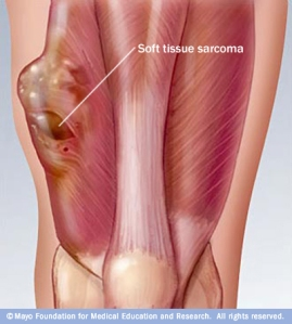 soft_tissue_sarcoma_leg