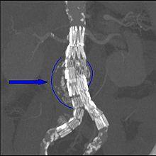 220px-Endovasc abdom aortic endoprosthesis