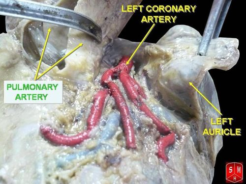 left main coronary artery