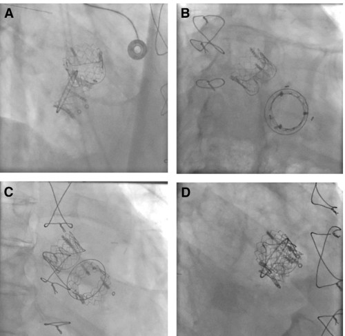 Concomitant Transcatheter Aortic and Mitral Valve-in-Valve Repla