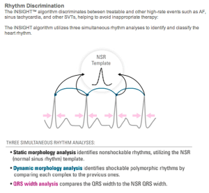 Insight Algorithm S-ICD