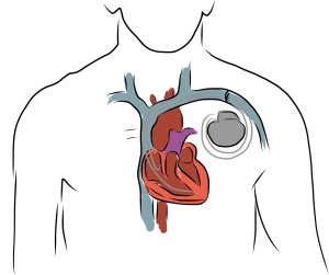 Boston Scientific Subcutaneous Implantable Cardiodefibrillator Device S-ICD