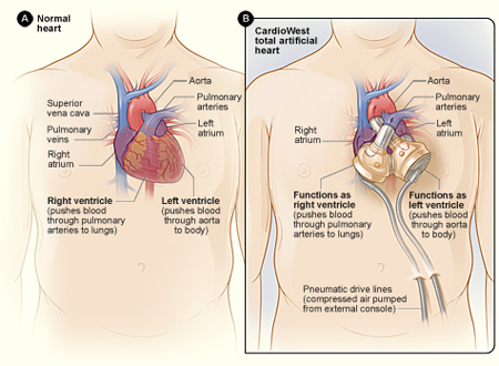 Alternative Designs for the Human Artificial Heart: Patients