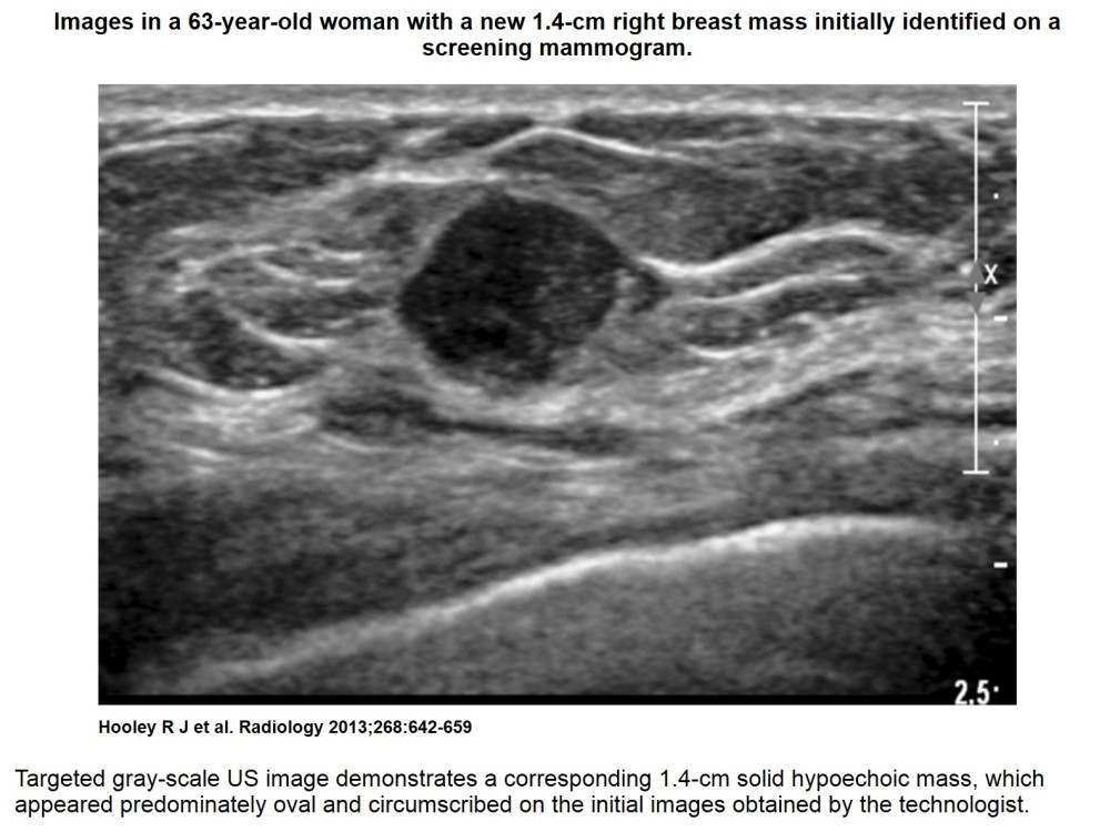 Recent comprehensive review on the role of ultrasound in breast cancer management (1/6)