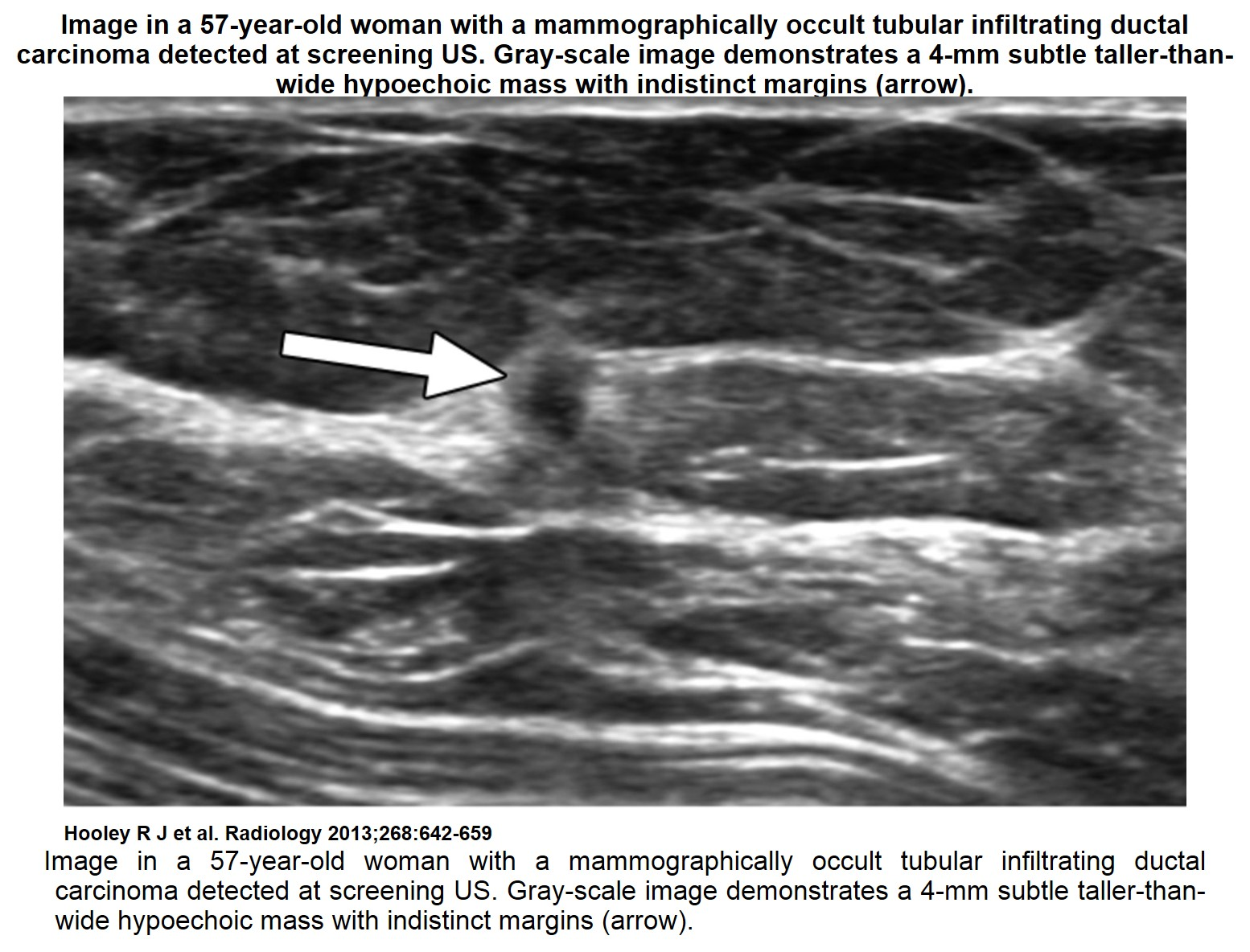 Recent Comprehensive Review On The Role Of Ultrasound In Breast