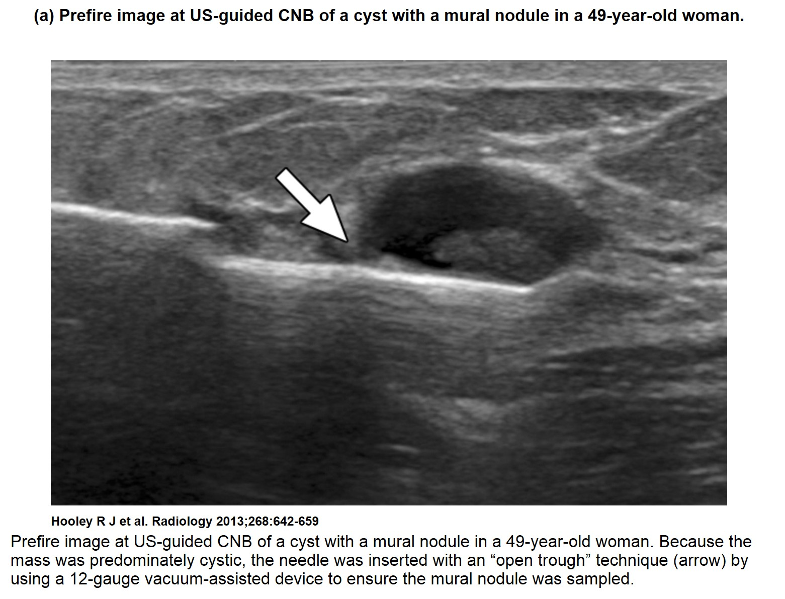 ultrasound breast cancer
