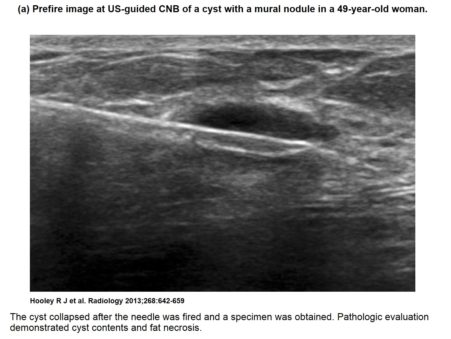 Whether to do ultrasound of the mammary glands