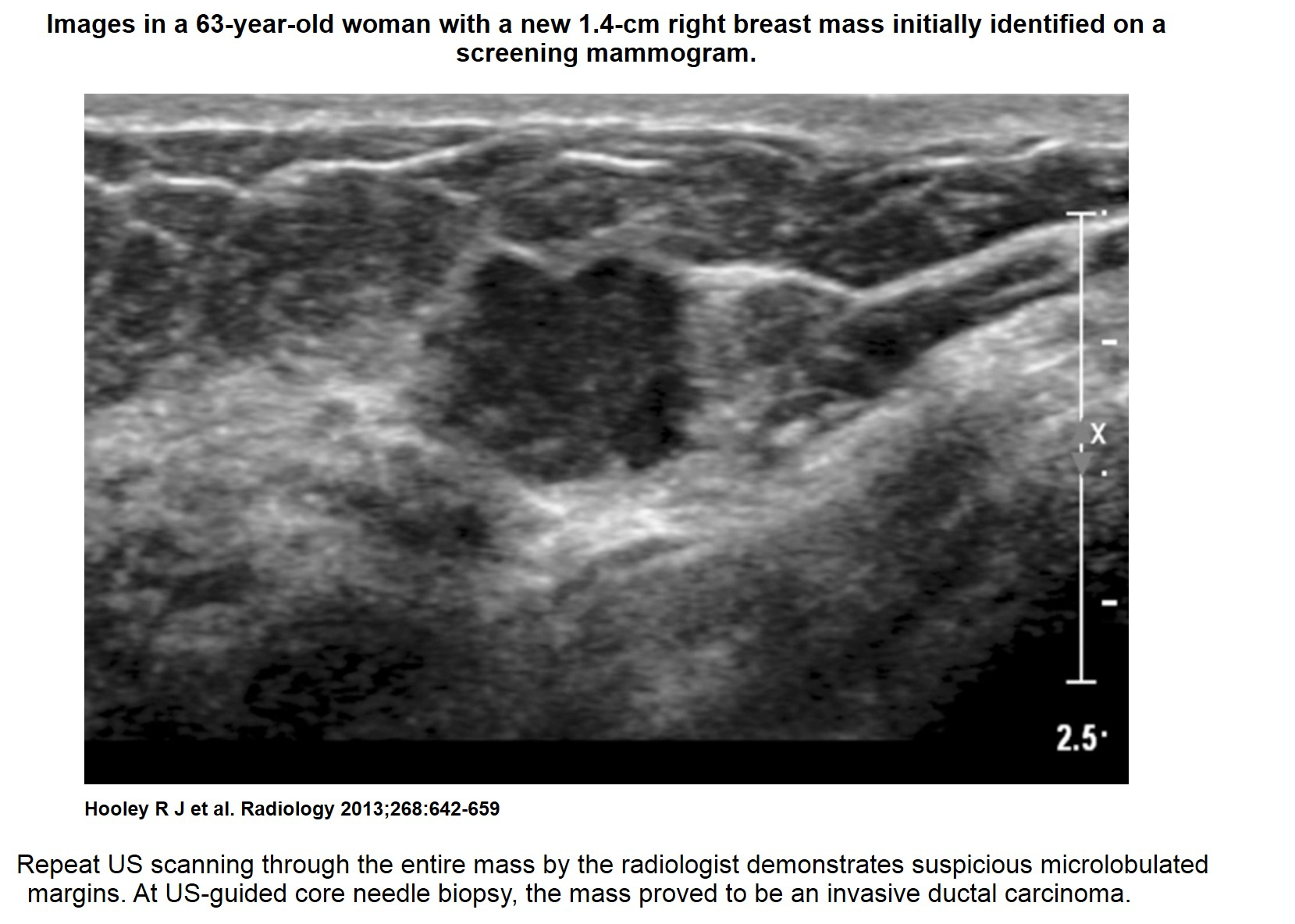 Breast Cancer Awareness Pictures Symptoms amp Treatment