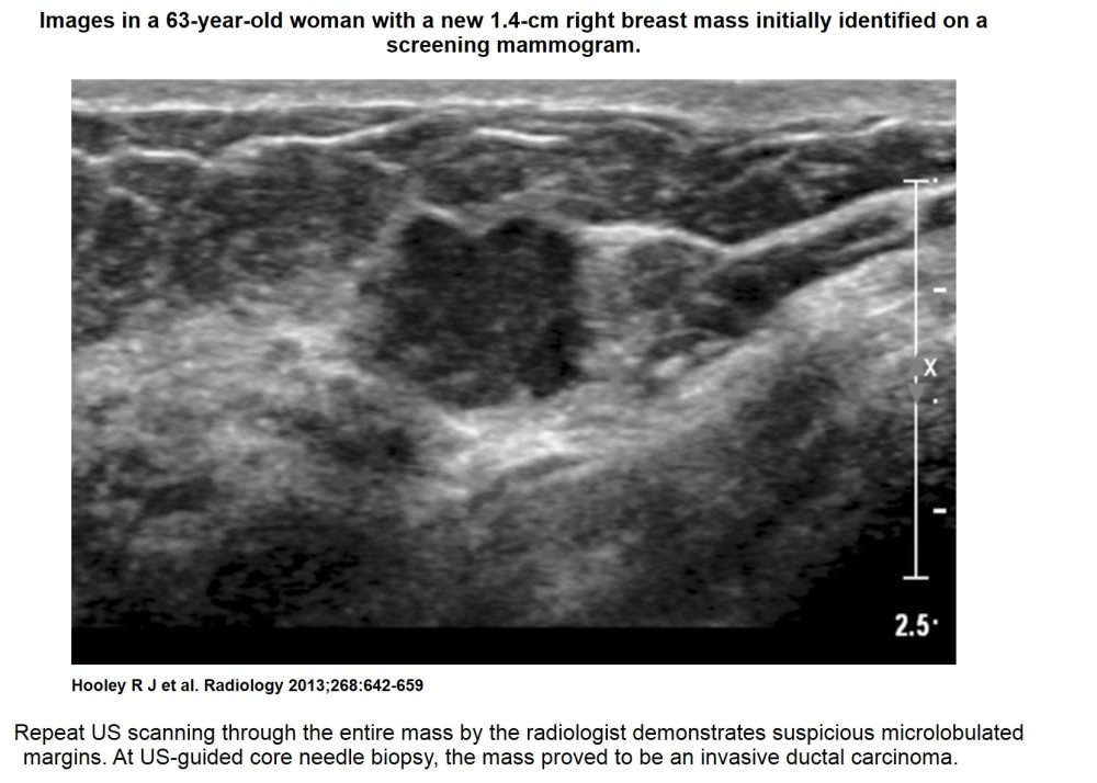 Recent comprehensive review on the role of ultrasound in breast cancer management (2/6)