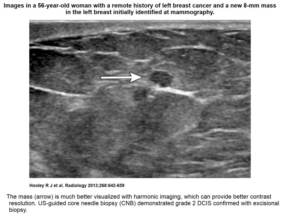 Recent comprehensive review on the role of ultrasound in breast cancer management (6/6)