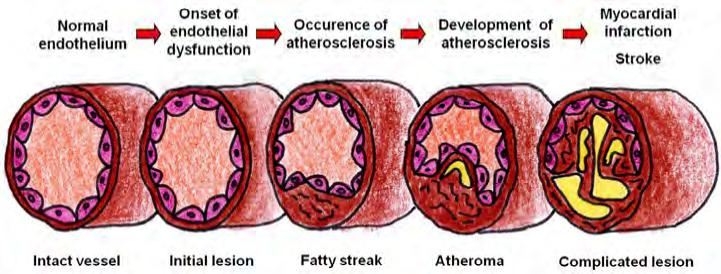Atherosclerosis and age
