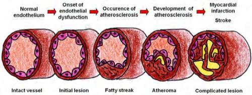atherosclerosis progression
