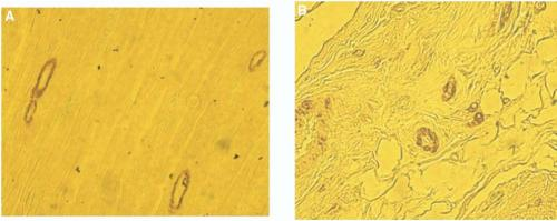 Figure 4. Smooth muscle actin staining