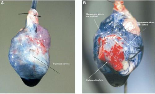 Figure 6. coronary artery prfusion of isolated hearts