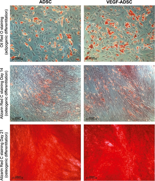 Figure 5. Adipogenic and osteogenic differentiation of gene modified ADSC