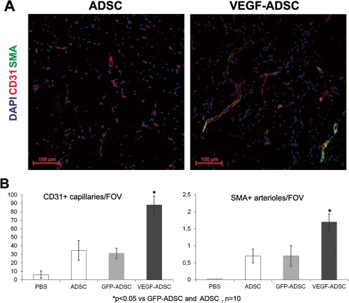 Figure 8. Effect of VEGF-ADSC or ADSC on vascularization of matrigel implants in nude mice.