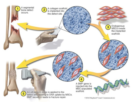 delivery in regenerative medicine image102
