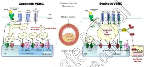 Schematic representation of Calcium Cycling in Contractile and Proliferating VSMCs