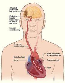 1ec47-9-infeksi-dapat-sebabkan-stroke-dan-penyakit-jantung