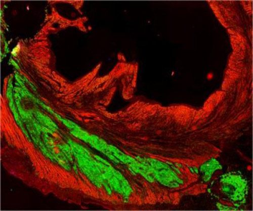 implanted graft of cardiac cells derived from human stem cells (green)