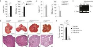 EGFR c2a expression in Kupffer cells.liver macrophages promotes HCC development.