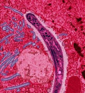 Malaria. Wikipedia