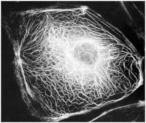 Intermediate Filaments support the nuclear membrane and connect cells at cell junctions