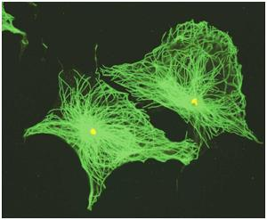 microtubules (MTs; green) radiate from MTOCs (yellow) towards the cell periphery