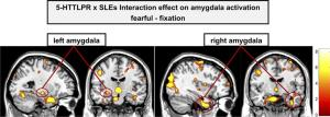 Amygdala reactivity to fearful faces as a function of the serotonin transporter-linked polymorphic region (5-HTTLPR)
