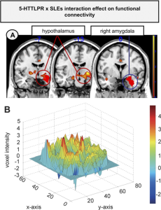 Functional connectivity between the right amygdala as the seed region