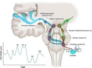 The auditory pathway and normal auditory brainstem response (ABR).