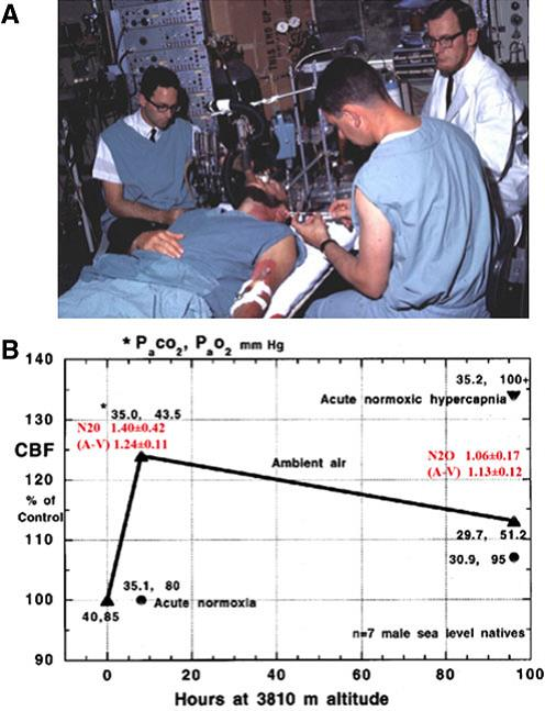the Kety-Schmidt nitrous oxide method of measuring CBF