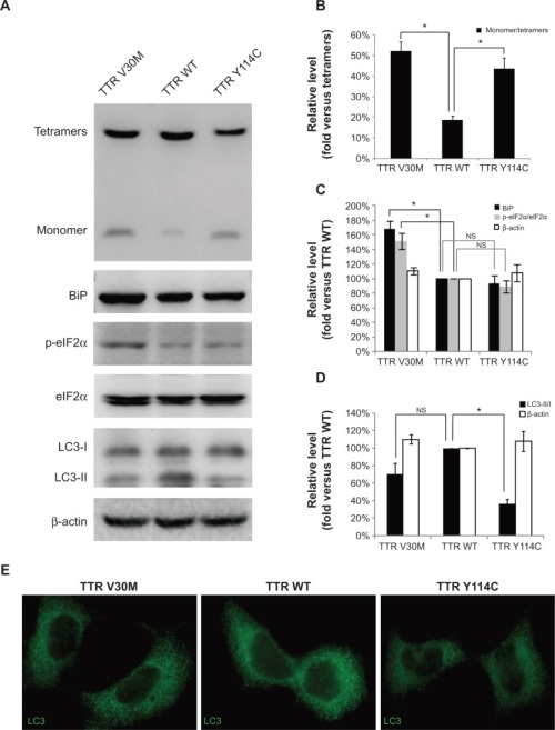 Changes in autophagy and endoplasmic reticulum stress related to wild-type TTR, TTR V30M, and TTR Y114C dddt-8-2121Fig1