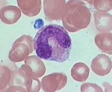 band neutrophilx100a