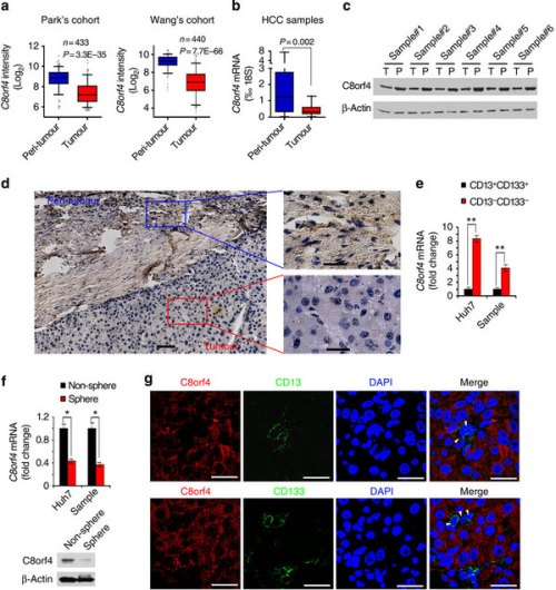 C8orf4 is weakly expressed in HCC tumours and liver CSCs