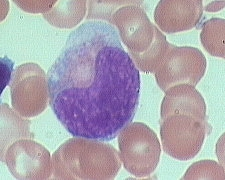 metamyelocyte x100