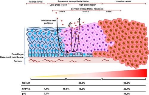 Progression of cervical cancer by HPV and promoter methylation during progression