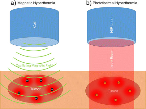 Two different approaches of nanoparticle based hyperthermia therapy