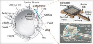Ocular delivery