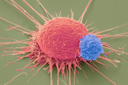 T Cell - Cancer Cell.jepg